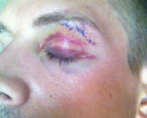 Tomas' eye after the incident.